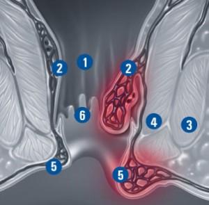 Notranji in zunanji hemoroidi